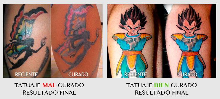 curar tatuaje