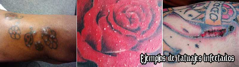 Tatuajes infectados y sobrehidratados
